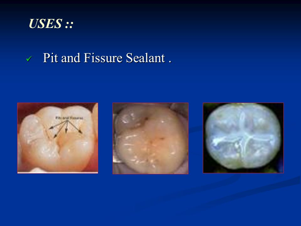 Pit and Fissure Sealant. Pit and Fissure Sealant. USES ::
