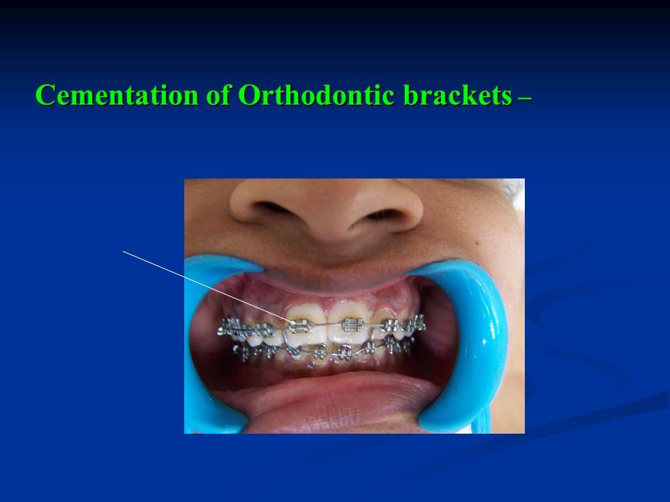 Cementation of Orthodontic brackets –