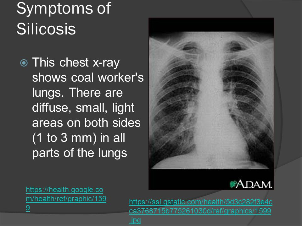 Symptoms of Silicosis  This chest x-ray shows coal worker s lungs.