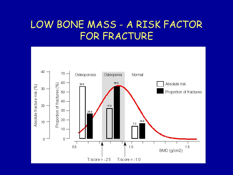 LOW BONE MASS - A RISK FACTOR FOR FRACTURE