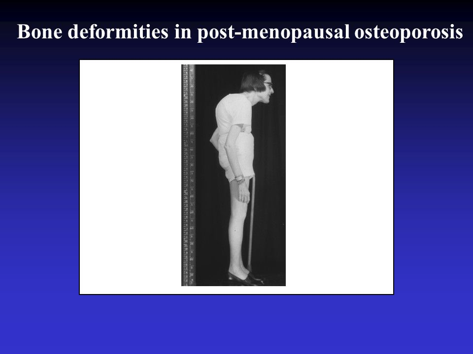 Bone deformities in post-menopausal osteoporosis