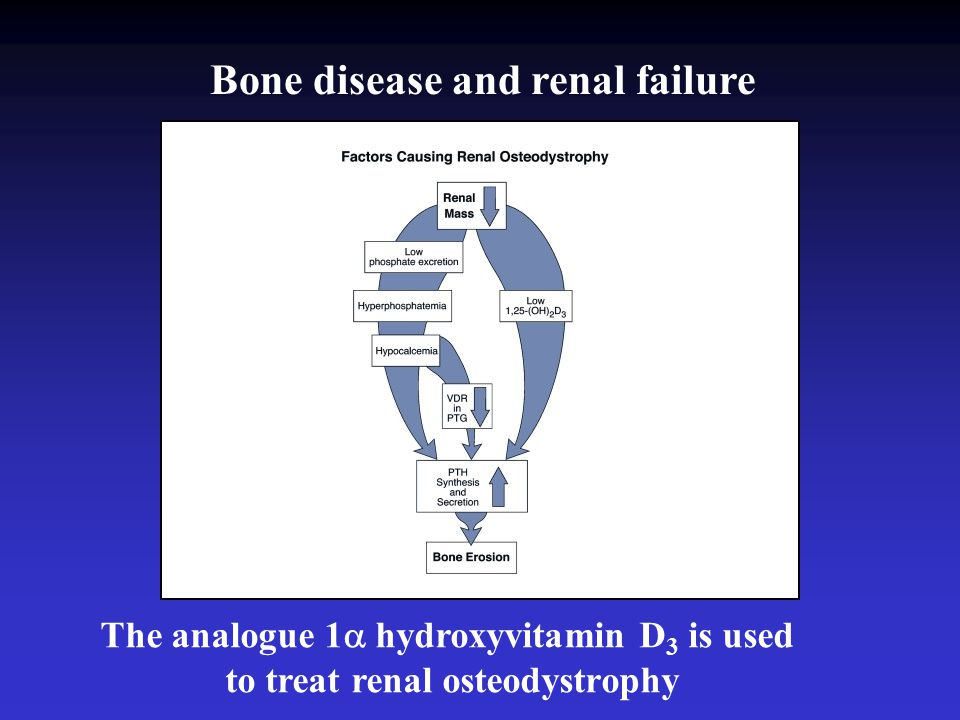 The analogue 1  hydroxyvitamin D 3 is used to treat renal osteodystrophy Bone disease and renal failure