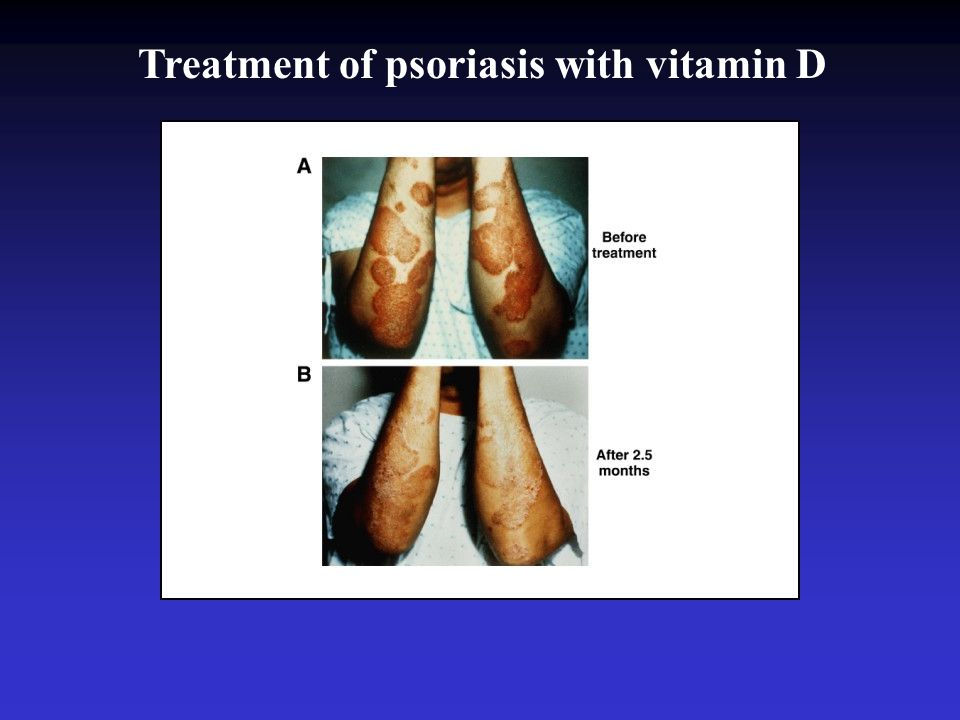 Treatment of psoriasis with vitamin D