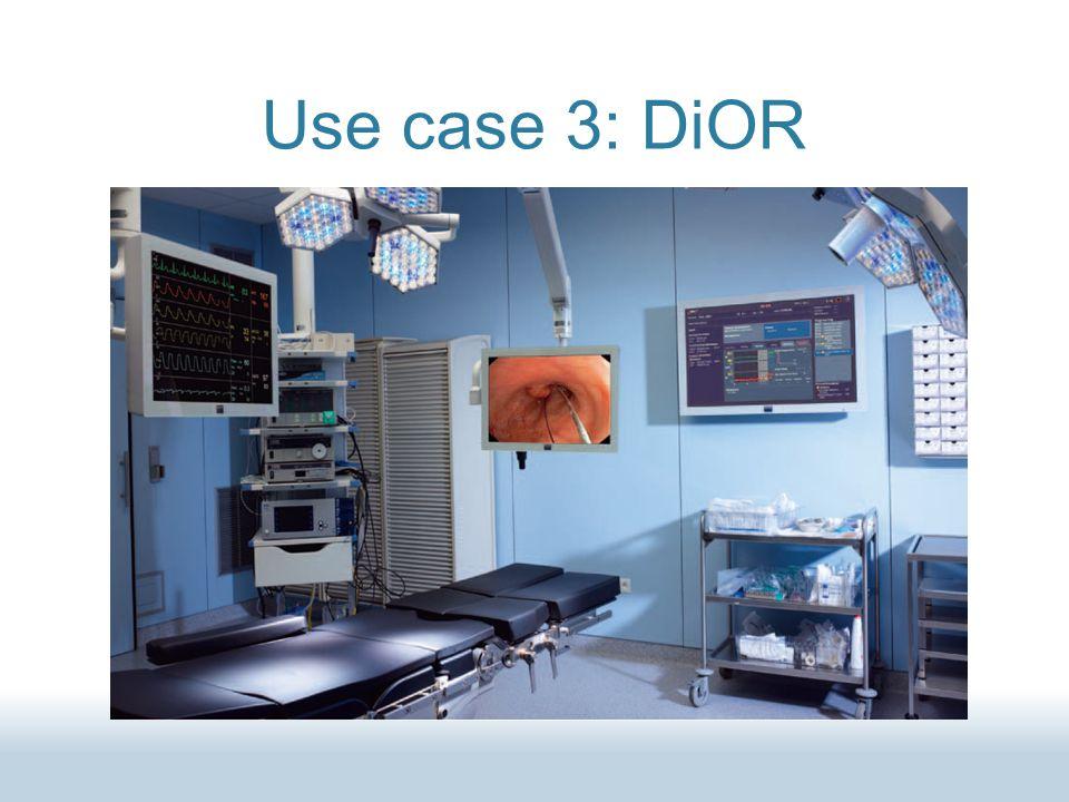 Use case 3: DiOR