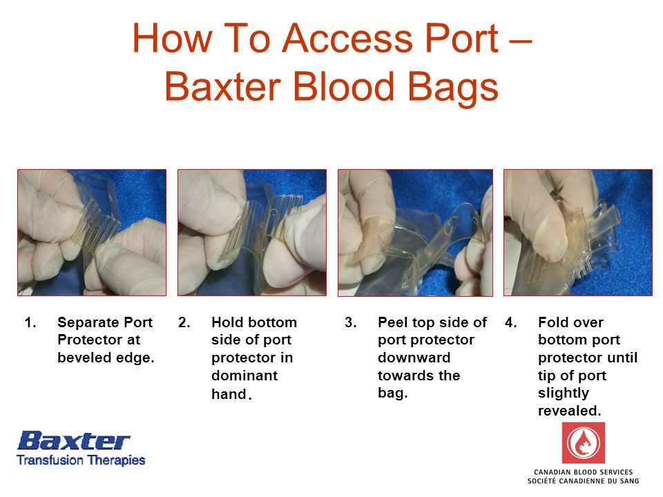 How To Access Port – Baxter Blood Bags 1.Separate Port Protector at beveled edge.