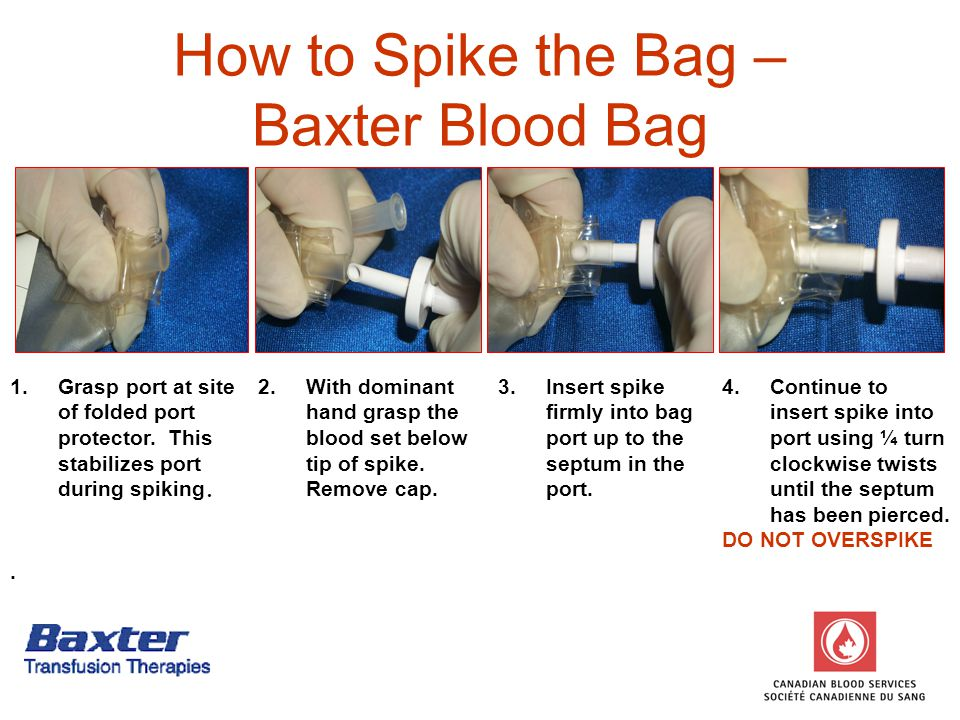 How to Spike the Bag – Baxter Blood Bag 1.Grasp port at site of folded port protector.