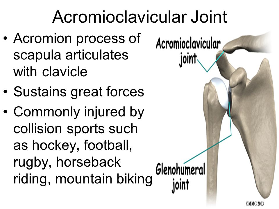Acromioclavicular Joint Acromion process of scapula articulates with clavicle Sustains great forces Commonly injured by collision sports such as hocke