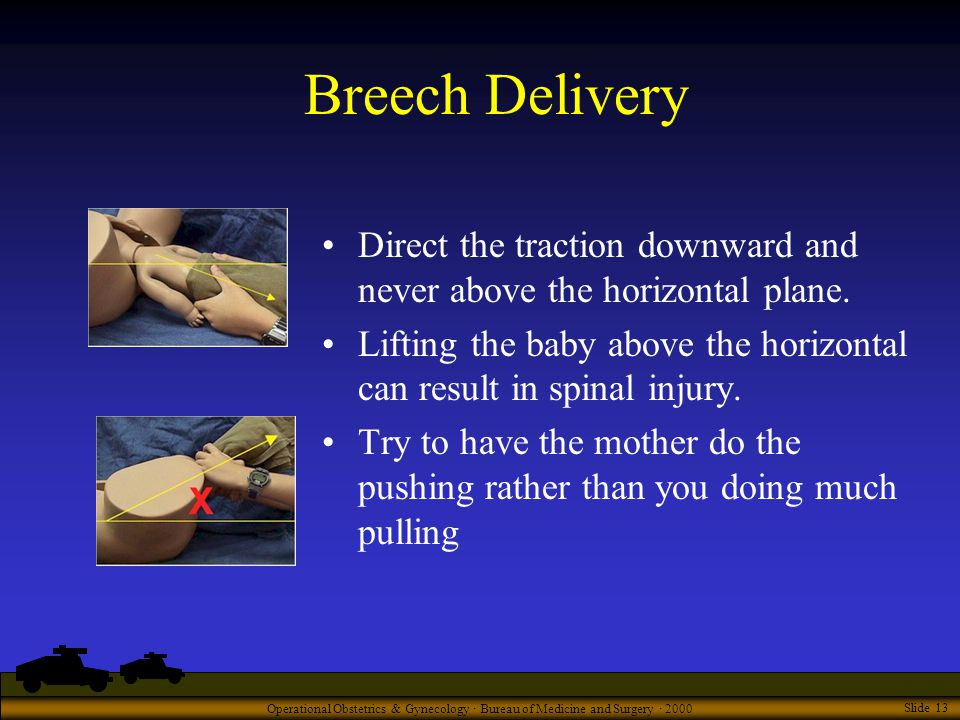 Operational Obstetrics & Gynecology · Bureau of Medicine and Surgery · 2000 Slide 13 Breech Delivery Direct the traction downward and never above the horizontal plane.
