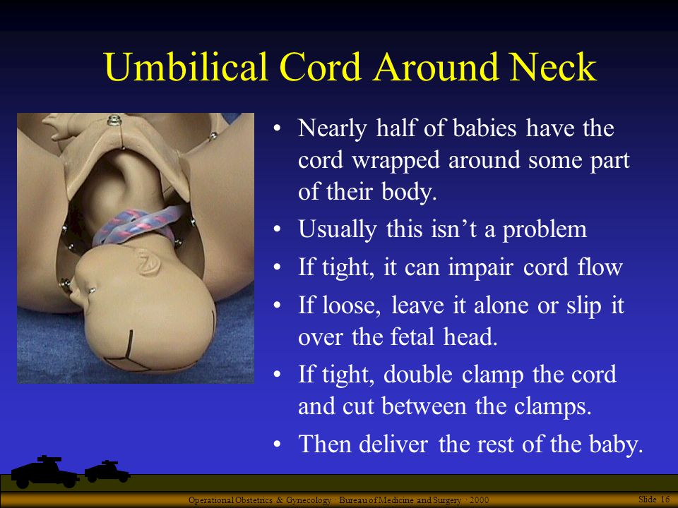 Operational Obstetrics & Gynecology · Bureau of Medicine and Surgery · 2000 Slide 16 Umbilical Cord Around Neck Nearly half of babies have the cord wrapped around some part of their body.