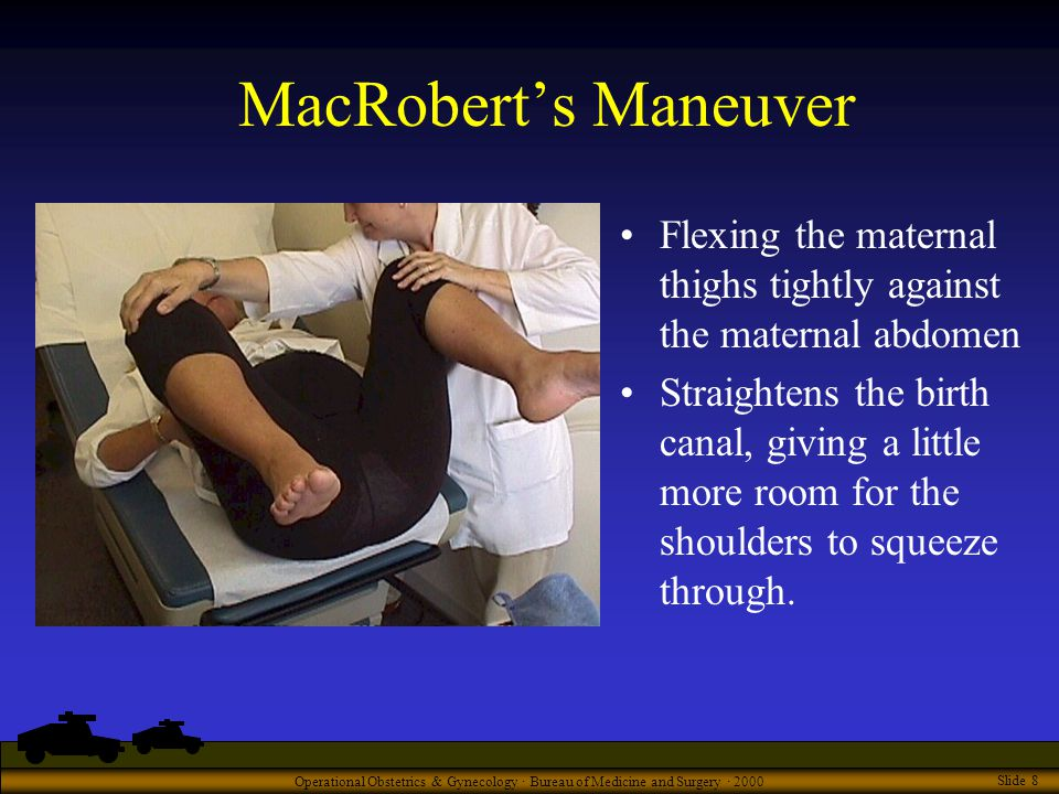 Operational Obstetrics & Gynecology · Bureau of Medicine and Surgery · 2000 Slide 8 MacRobert's Maneuver Flexing the maternal thighs tightly against the maternal abdomen Straightens the birth canal, giving a little more room for the shoulders to squeeze through.