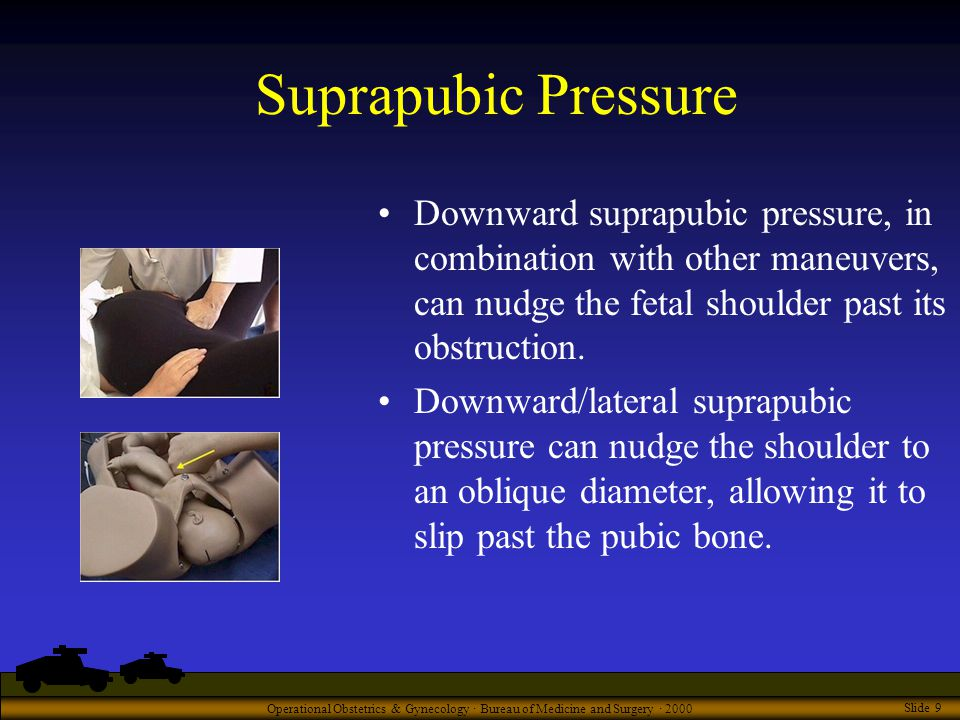 Operational Obstetrics & Gynecology · Bureau of Medicine and Surgery · 2000 Slide 9 Suprapubic Pressure Downward suprapubic pressure, in combination with other maneuvers, can nudge the fetal shoulder past its obstruction.
