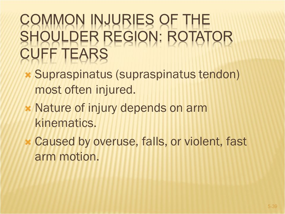 5-39  Supraspinatus (supraspinatus tendon) most often injured.  Nature of injury depends on arm kinematics.  Caused by overuse, falls, or violent,