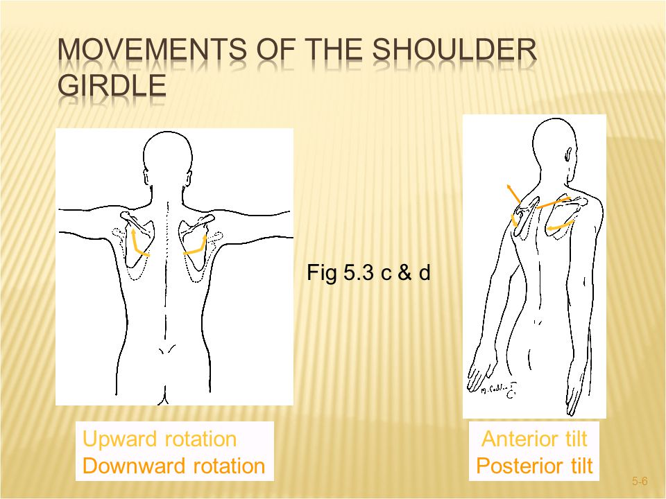 5-37  Clavicle fractures have causes similar to AC sprain:  Downward blow to outer end of shoulder.