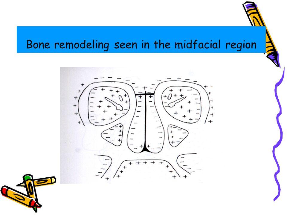 Bone remodeling seen in the midfacial region