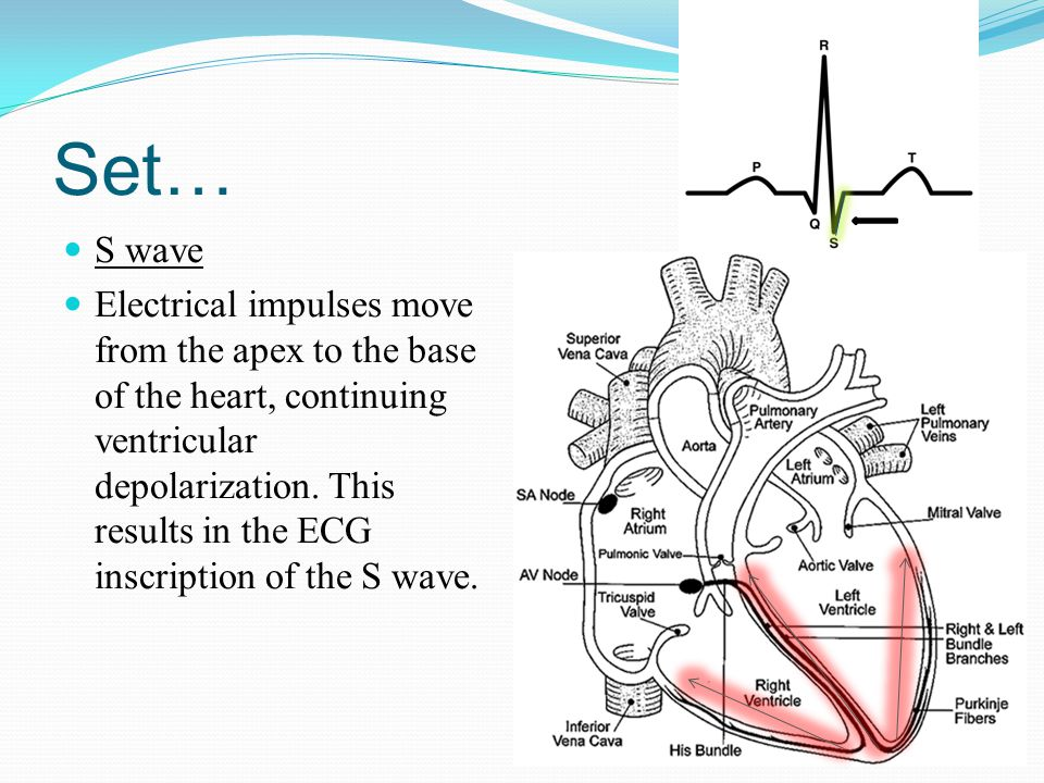 Set… S wave Electrical impulses move from the apex to the base of the heart, continuing ventricular depolarization. This results in the ECG inscriptio
