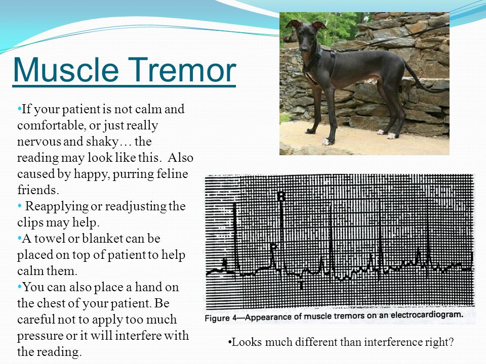Muscle Tremor If your patient is not calm and comfortable, or just really nervous and shaky… the reading may look like this. Also caused by happy, pur
