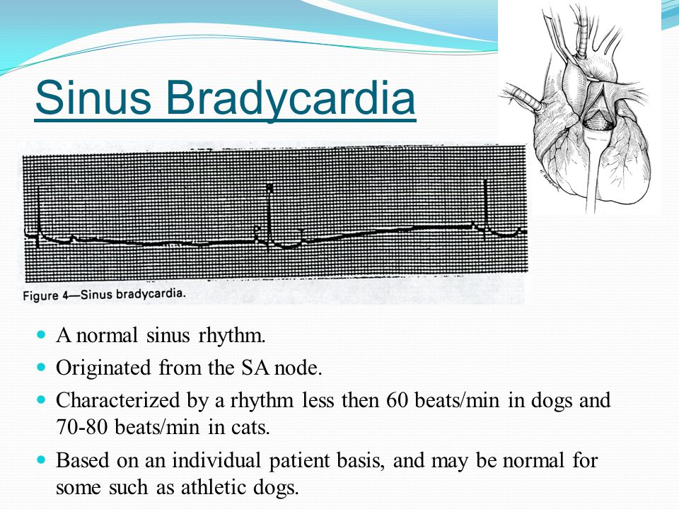 Sinus Bradycardia A normal sinus rhythm. Originated from the SA node. Characterized by a rhythm less then 60 beats/min in dogs and 70-80 beats/min in