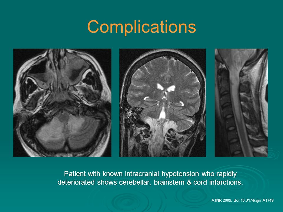 Complications Patient with known intracranial hypotension who rapidly deteriorated shows cerebellar, brainstem & cord infarctions. AJNR 2009, doi:10.3