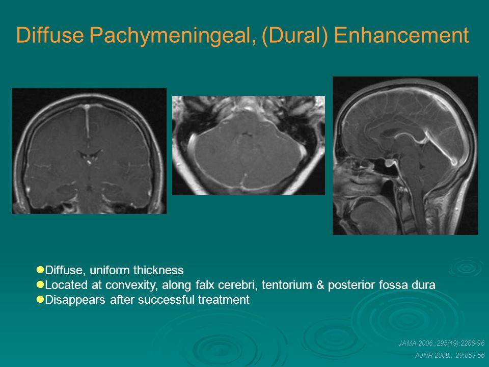 AJNR 2008.; 29:853-56 Diffuse, uniform thickness Located at convexity, along falx cerebri, tentorium & posterior fossa dura Disappears after successfu