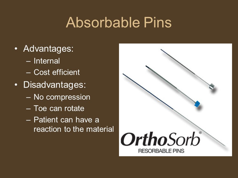 Absorbable Pins Advantages: –Internal –Cost efficient Disadvantages: –No compression –Toe can rotate –Patient can have a reaction to the material