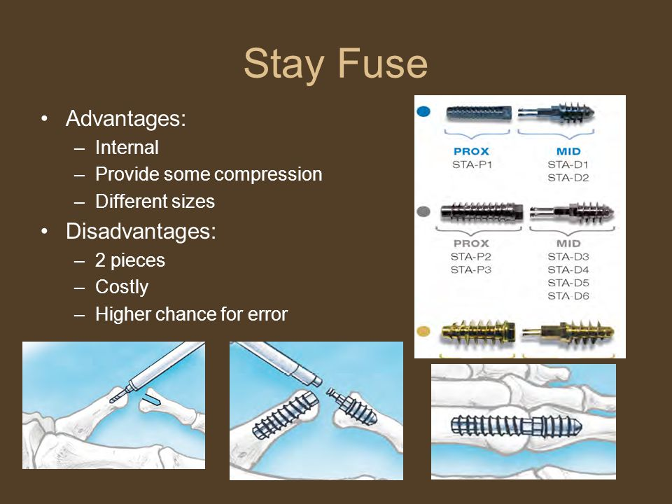 Stay Fuse Advantages: –Internal –Provide some compression –Different sizes Disadvantages: –2 pieces –Costly –Higher chance for error