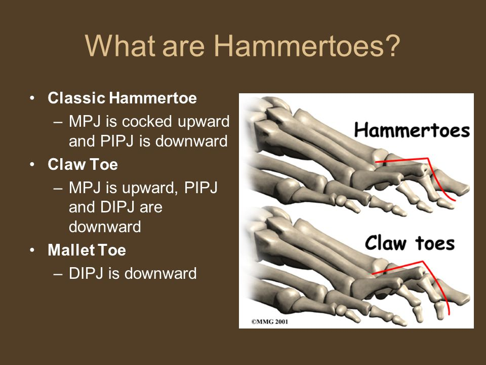 What are Hammertoes.