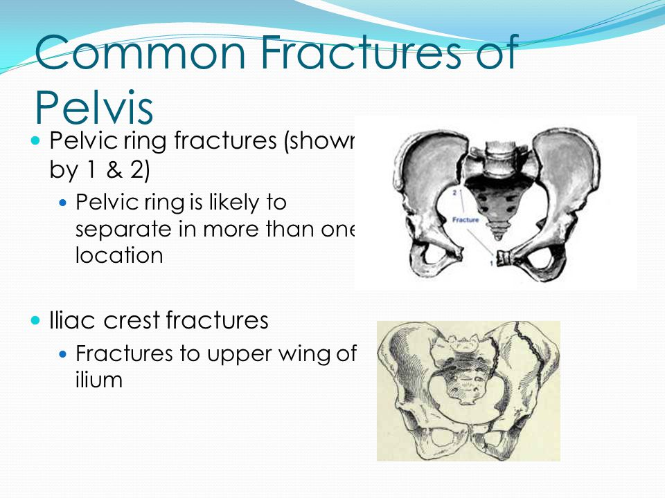 Common Fractures of Pelvis Pelvic ring fractures (shown by 1 & 2) Pelvic ring is likely to separate in more than one location Iliac crest fractures Fr
