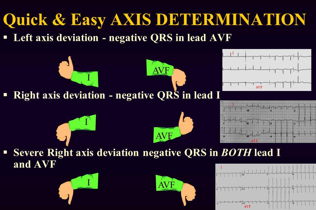  Left axis deviation - negative QRS in lead AVF  Right axis deviation - negative QRS in lead I  Severe Right axis deviation negative QRS in BOTH lead I and AVF Quick & Easy AXIS DETERMINATION AVF I I I I I I