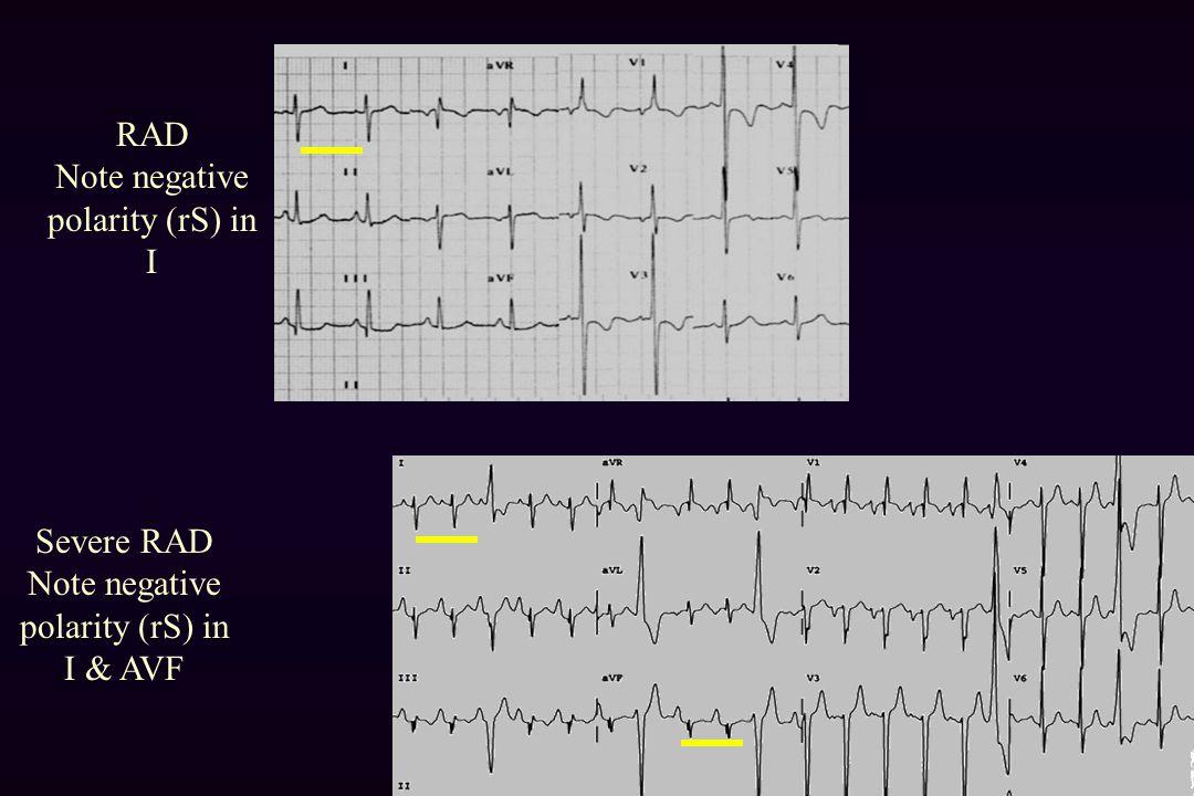 RAD Note negative polarity (rS) in I Severe RAD Note negative polarity (rS) in I & AVF