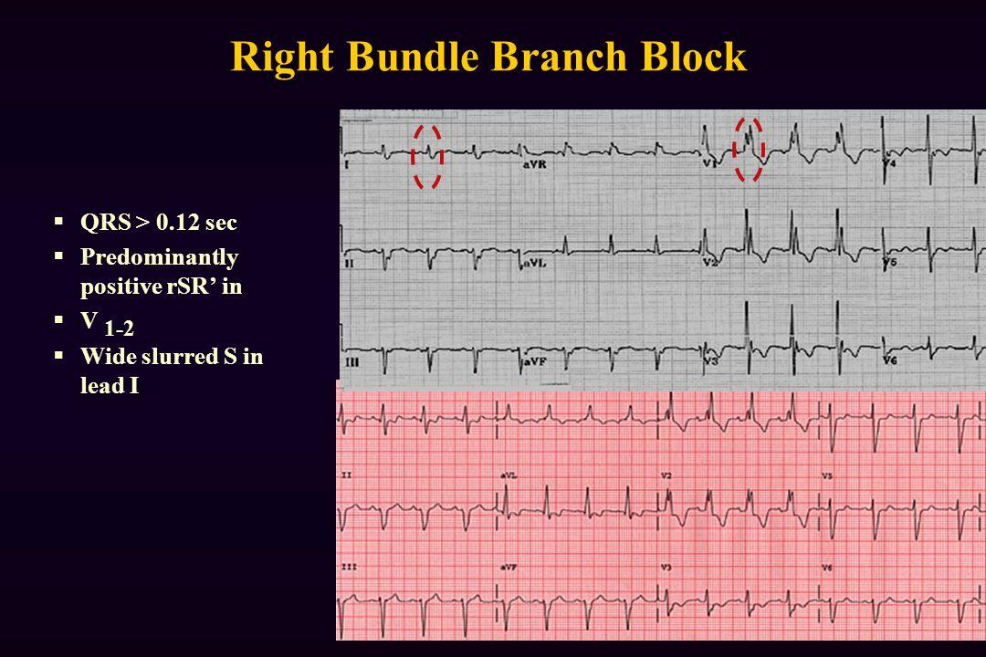 Right Bundle Branch Block  QRS > 0.12 sec  Predominantly positive rSR' in  V 1-2  Wide slurred S in lead I