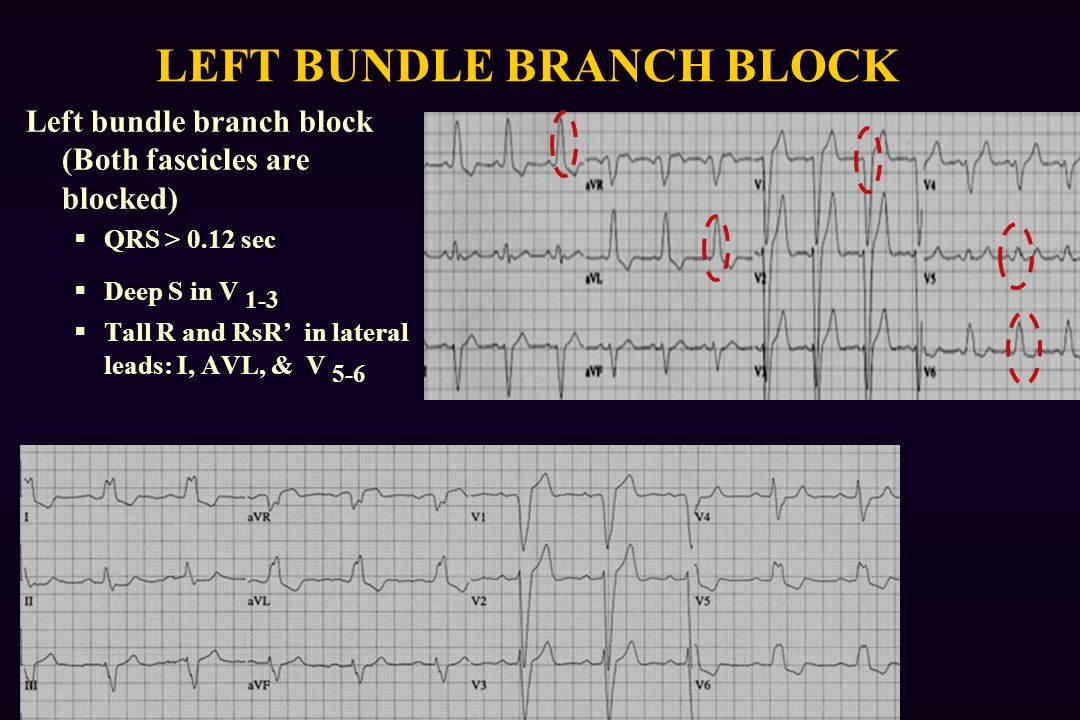 LEFT BUNDLE BRANCH BLOCK Left bundle branch block (Both fascicles are blocked)  QRS > 0.12 sec  Deep S in V 1-3  Tall R and RsR' in lateral leads: I, AVL, & V 5-6