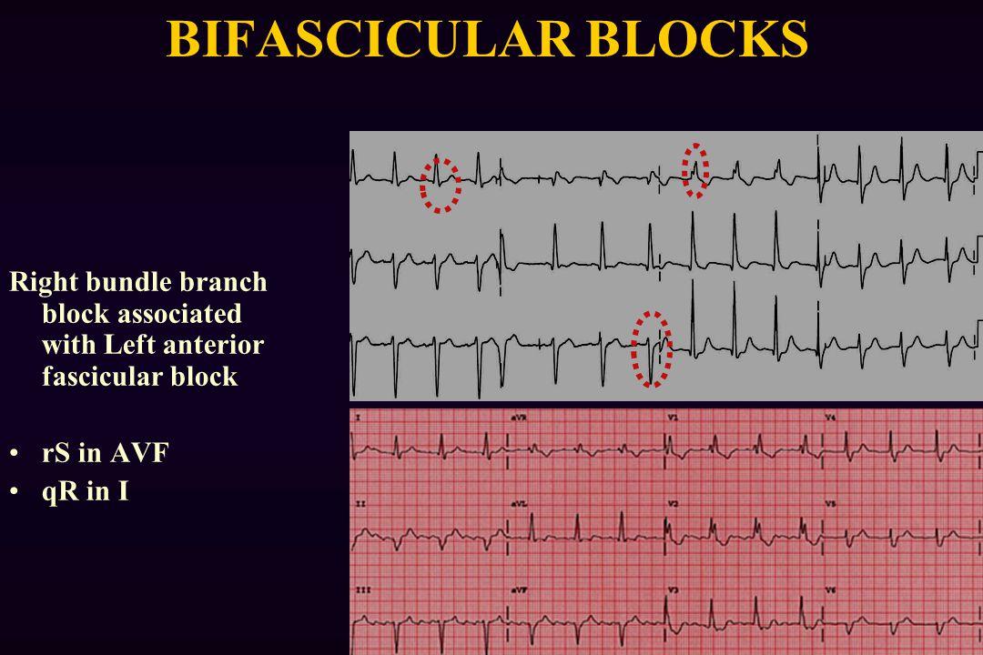 BIFASCICULAR BLOCKS Right bundle branch block associated with Left anterior fascicular block rS in AVF qR in I
