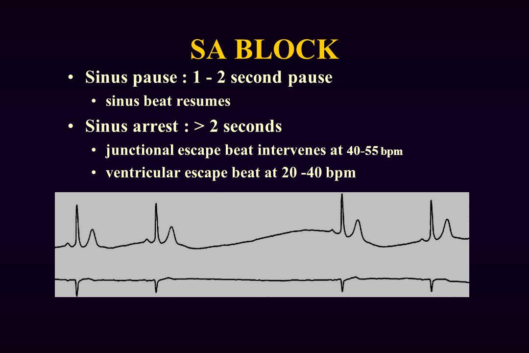 SA BLOCK Sinus pause : 1 - 2 second pause sinus beat resumes Sinus arrest : > 2 seconds junctional escape beat intervenes at 40-55 bpm ventricular escape beat at 20 -40 bpm
