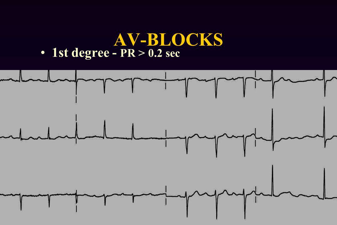 AV-BLOCKS 1st degree - PR > 0.2 sec