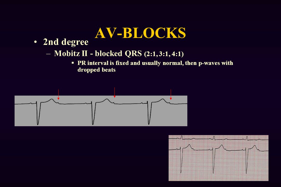 AV-BLOCKS 2nd degree –Mobitz II - blocked QRS (2:1, 3:1, 4:1)  PR interval is fixed and usually normal, then p-waves with dropped beats