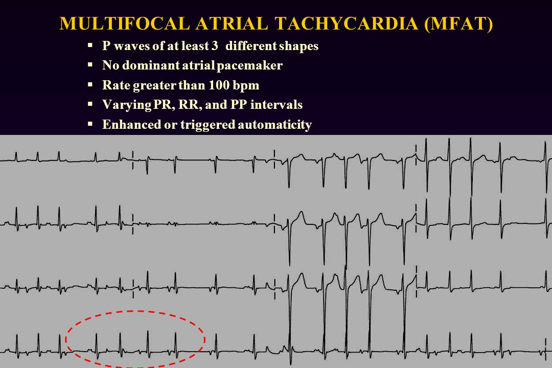 MULTIFOCAL ATRIAL TACHYCARDIA (MFAT)  P waves of at least 3 different shapes  No dominant atrial pacemaker  Rate greater than 100 bpm  Varying PR, RR, and PP intervals  Enhanced or triggered automaticity