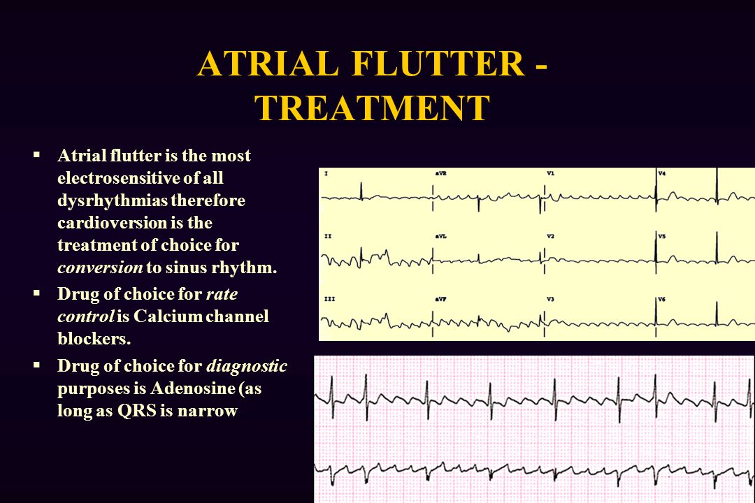 ATRIAL FLUTTER - TREATMENT  Atrial flutter is the most electrosensitive of all dysrhythmias therefore cardioversion is the treatment of choice for conversion to sinus rhythm.