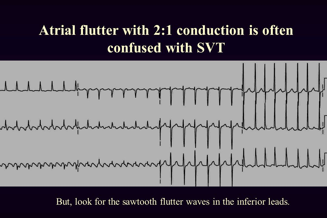 Atrial flutter with 2:1 conduction is often confused with SVT But, look for the sawtooth flutter waves in the inferior leads.