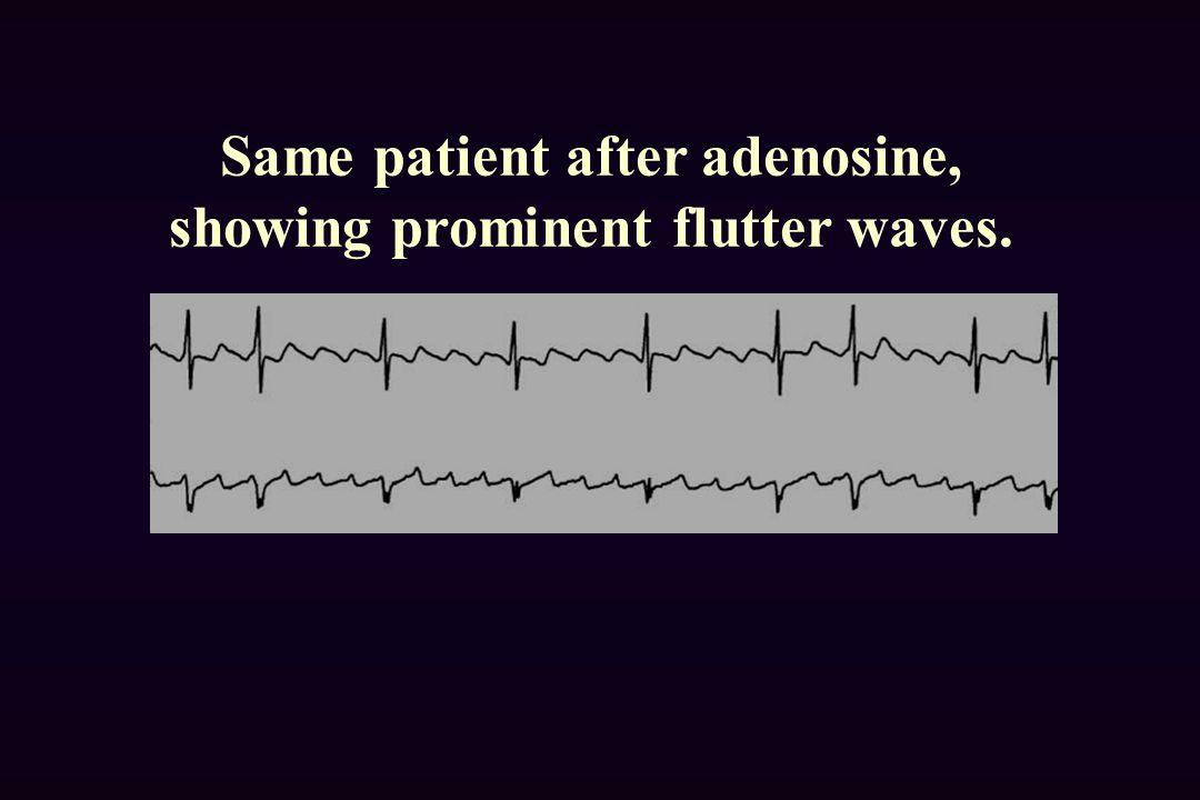 Same patient after adenosine, showing prominent flutter waves.