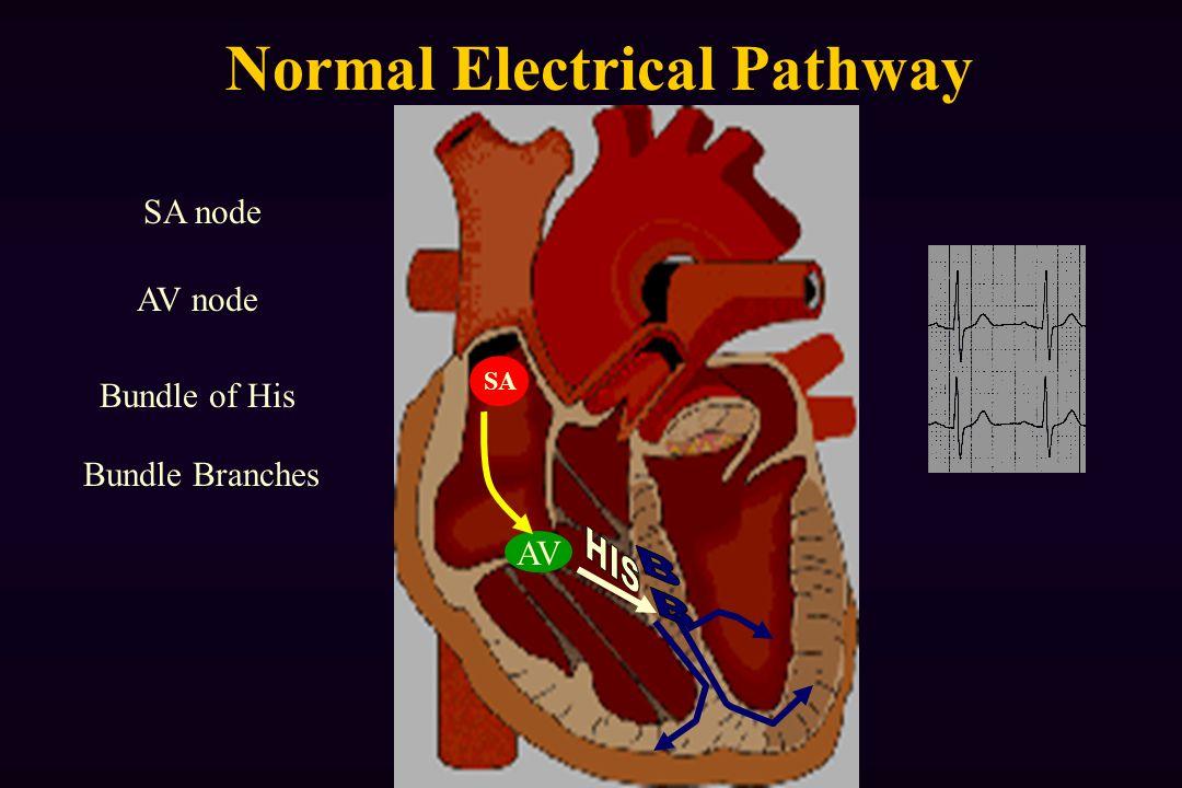 Normal Electrical Pathway AV AV node SA node Bundle of His Bundle Branches SA