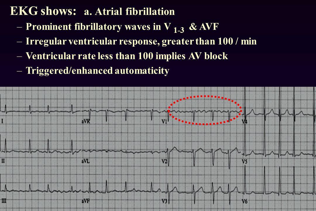 EKG shows: a.