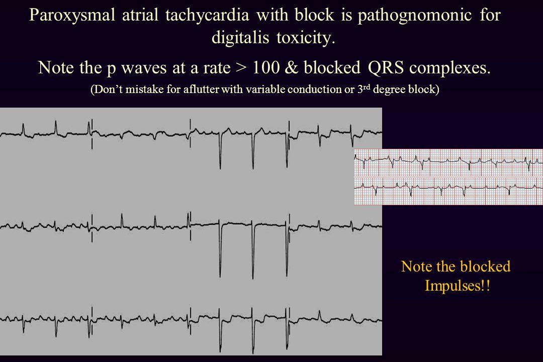 Paroxysmal atrial tachycardia with block is pathognomonic for digitalis toxicity.