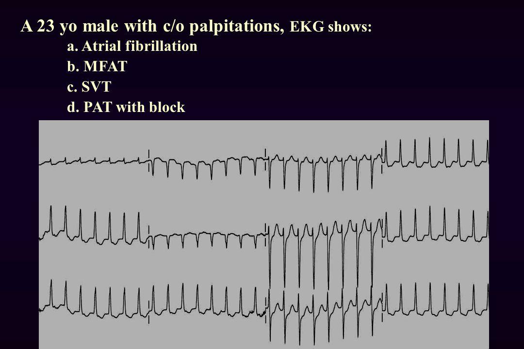 A 23 yo male with c/o palpitations, EKG shows: a.Atrial fibrillation b.