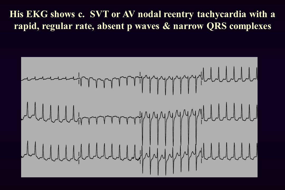 His EKG shows c.