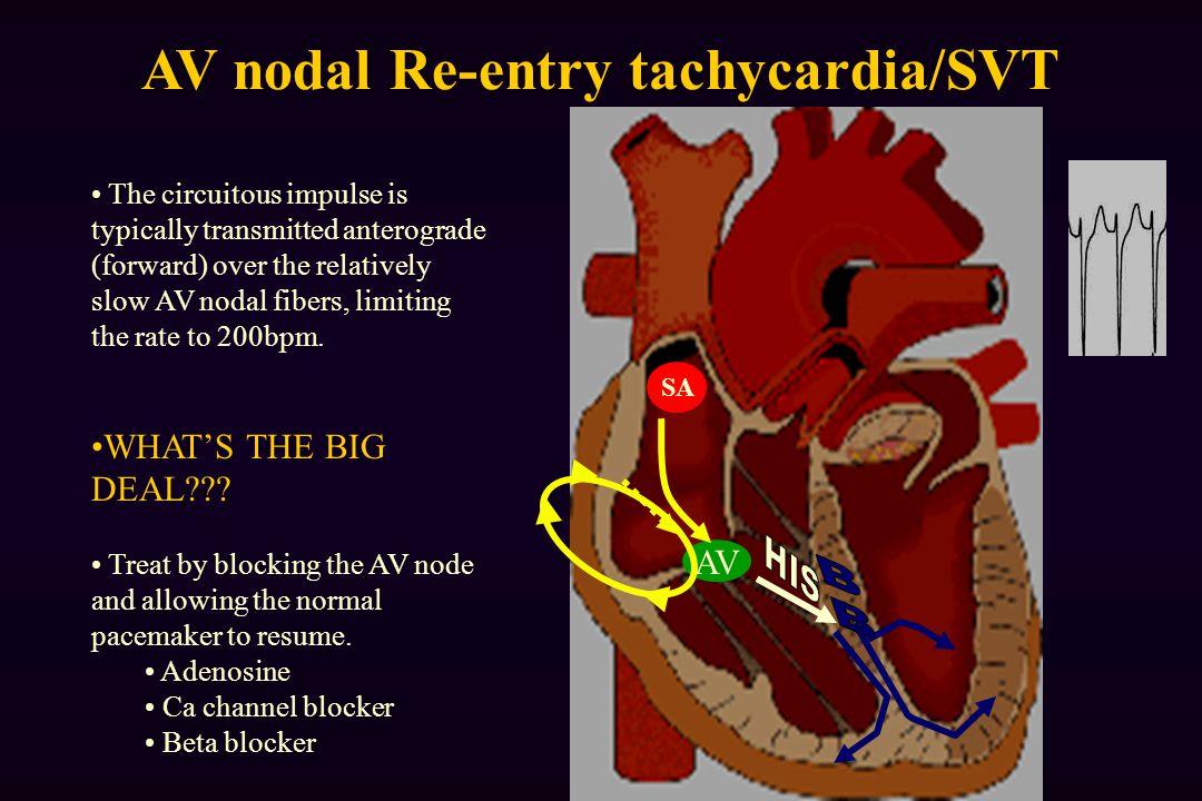 AV SA AV nodal Re-entry tachycardia/SVT The circuitous impulse is typically transmitted anterograde (forward) over the relatively slow AV nodal fibers, limiting the rate to 200bpm.