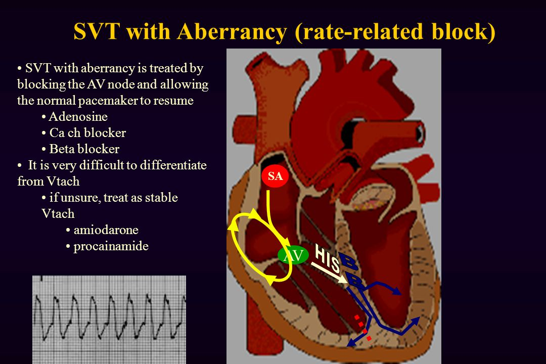AV SA SVT with aberrancy is treated by blocking the AV node and allowing the normal pacemaker to resume Adenosine Ca ch blocker Beta blocker It is very difficult to differentiate from Vtach if unsure, treat as stable Vtach amiodarone procainamide SVT with Aberrancy (rate-related block)