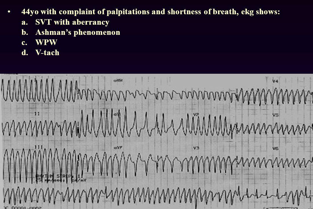 44yo with complaint of palpitations and shortness of breath, ekg shows: a.SVT with aberrancy b.Ashman's phenomenon c.WPW d.V-tach