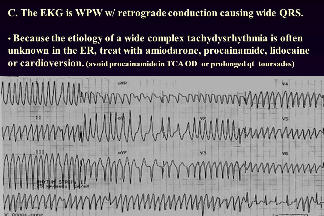 C.The EKG is WPW w/ retrograde conduction causing wide QRS.