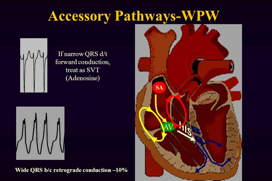 AV SA Accessory Pathways-WPW If narrow QRS d/t forward conduction, treat as SVT (Adenosine) Wide QRS b/c retrograde conduction –10%