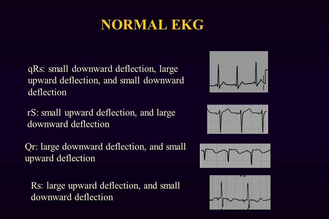 NORMAL EKG rS: small upward deflection, and large downward deflection Qr: large downward deflection, and small upward deflection qRs: small downward deflection, large upward deflection, and small downward deflection Rs: large upward deflection, and small downward deflection